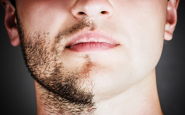 Best Razors for Men with Sensitive Skin