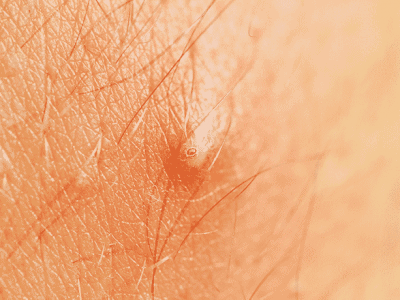 How to Prevent Ingrown Hairs: 10 Tips on Preventing and Treating This Condition